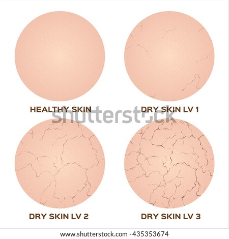 step of healthy skin to dry skin texture , vector icon - stock vector