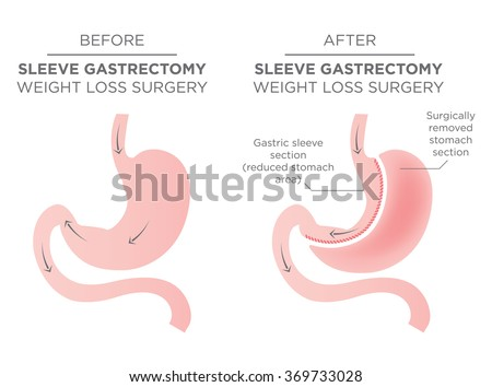 Stomach Staple Bariatric Surgery Resulting in 1/4 of the Stomach Removed. - stock vector
