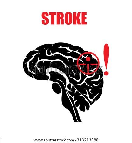 stroke medical stock vectors   vector clip art shutterstock Brain Aneurysm Ribbon Decal Brain Aneurysm Ribbon Tattoos