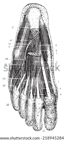 Surface layer of the sole of the foot, after removal of the skin, subcutaneous layer and fascia, vintage engraved illustration. Usual Medicine Dictionary - Paul Labarthe - 1885.  - stock vector