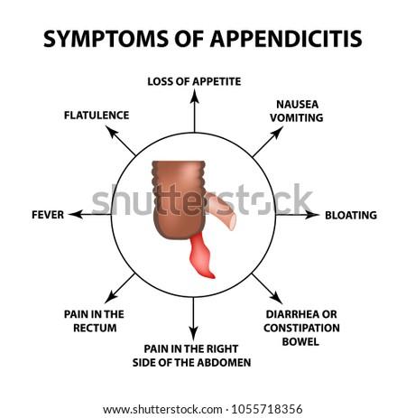 Symptoms Appendicitis Inflammation Appendix Infographics Vector ...