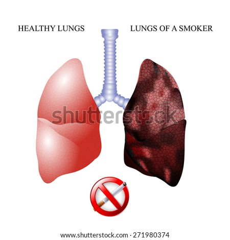 the dangers of Smoking, the lungs of a healthy person and smoker - stock vector