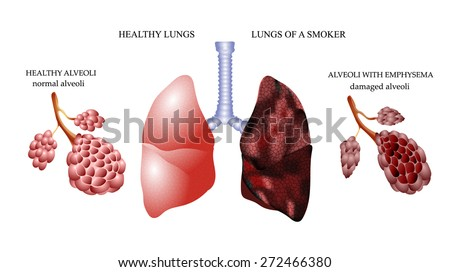 Dangers smoking lungs healthy person smoker stock vector royalty the dangers of smoking the lungs of a healthy person and smoker alveoli ccuart Images