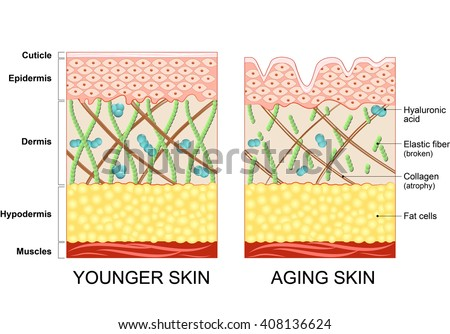 The diagram of younger skin and aging skin showing the decrease in collagen and broken elastin in older skin.