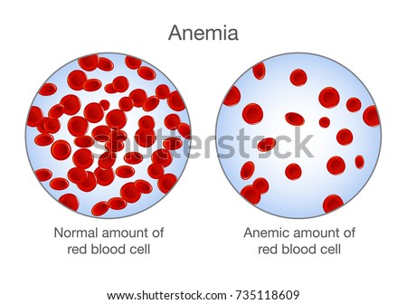 Anemia And Cancer In Cats