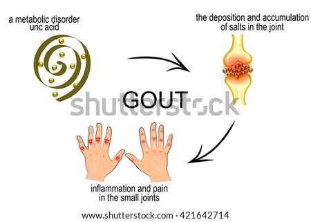 the mechanism of development of gout. pain in the joints. - stock vector