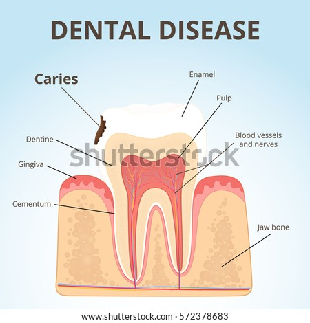 physiology of periodontal and dental problems essay Dental implantology is the field of dentistry that is concerned with the replacement of missing teeth and  psychological problems due to low self-esteem and social.