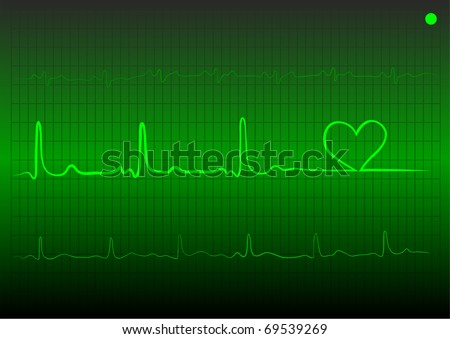 The vector cardiogram with heart of green color