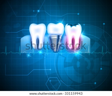 Tooth conditions healthy, caries and dental implant on an abstract blue technology background