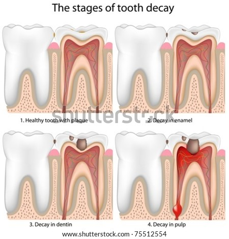 Tooth decay - stock vector