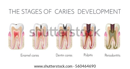 Tooth Decay Stages Caries Development Enamel Stock Vector ...