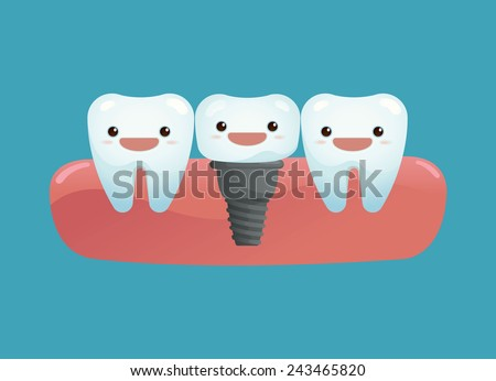 Tooth implant  - stock vector