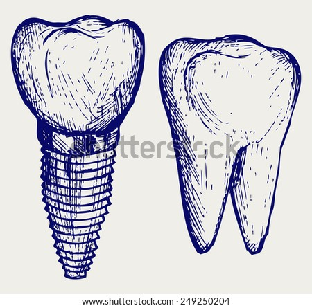 Tooth implant and molar. Doodle style - stock vector