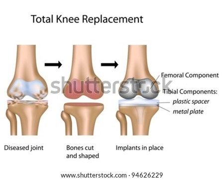 Total knee replacement surgery - stock vector