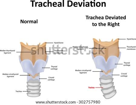 larynx labeled diagram stock illustration 261971486