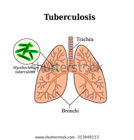 hydningmill • Blog Archive • Tuberculosis and the tubercle
