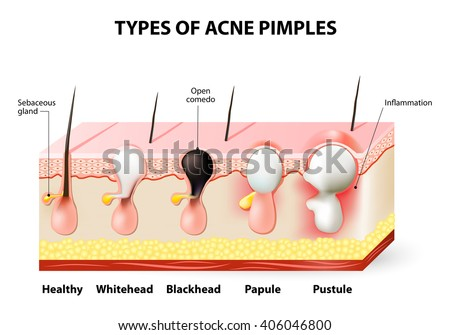 types acne pimples healthy skin whiteheads stock vector 248595325, Cephalic Vein