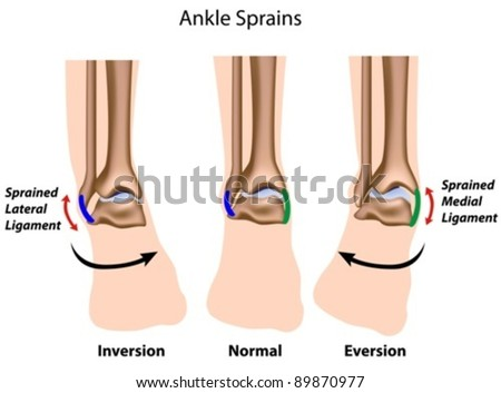Types of ankle sprains - stock vector