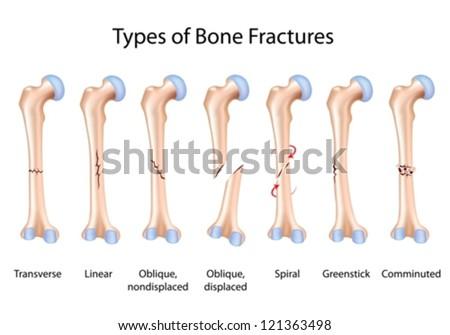 Types of bone fractures - stock vector