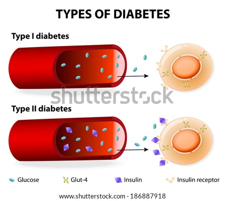 Types of Diabetes. Type 1 and Type 2 Diabetes Mellitus. Insulin-Dependent Diabetes Mellitus and Non Insulin-Dependent Diabetes Mellitus. Insulin resistance and insufficient insulin production. - stock vector
