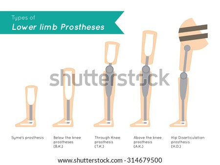 What Are the Different Types of Prosthetics?