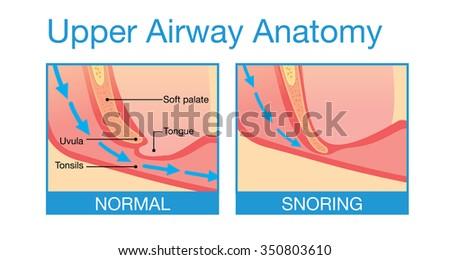 Upper airway human anatomy in  normal sleeping and have snoring. - stock vector