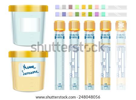 urine test laboratory equipment urinalysis yellow stock vector rh shutterstock com