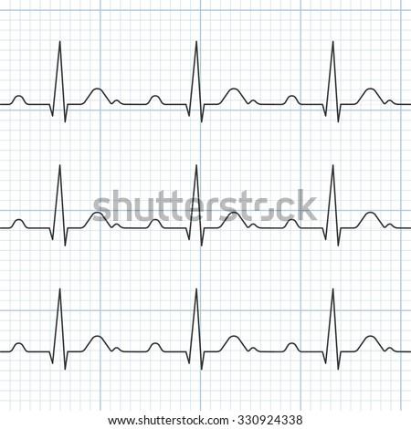 Vector cardiogram,flat design - stock vector