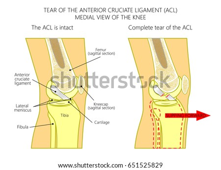 Vector illustration anatomy knee joint healthy em vetor stock vector illustration anatomy of a knee joint with healthy and torn anterior cruciate ligament side ccuart Gallery