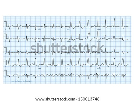 vector illustration looks like real cardio diagram - stock vector