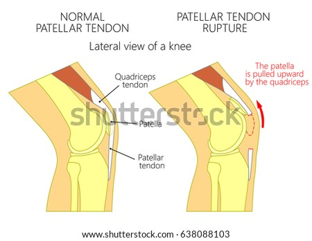 Vector Illustration Healthy Knee Joint Unhealthy Stock Vector ...