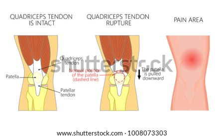 Vector illustration healthy knee joint unhealthy stock vector vector illustration of a healthy knee joint and an unhealthy knee with a quadriceps tendon rupture ccuart Choice Image