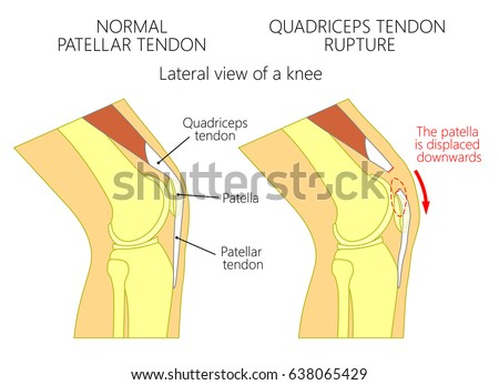 Vector illustration healthy knee joint unhealthy em vetor stock vector illustration of a healthy knee joint and an unhealthy knee with a quadriceps tendon rupture ccuart Choice Image