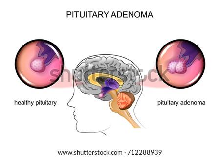 Vector Illustration Healthy Pituitary Pituitary Adenoma Stock ...