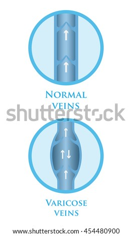 Vector illustration of a varicose vein and normal vein. - stock vector