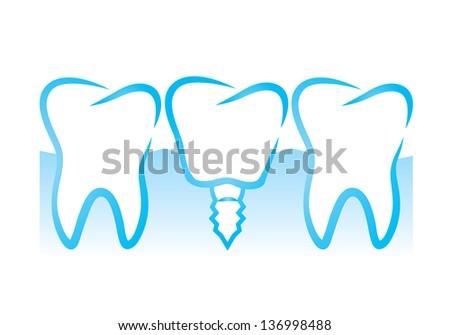 Vector illustration of dental implant - stock vector