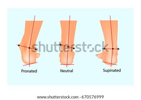 Vector Illustration Normal Human Foot Foot Stockvector 670576999 ...