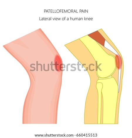 Vector Illustration Unhealthy Human Knee Joint Stock Vector (2018 ...