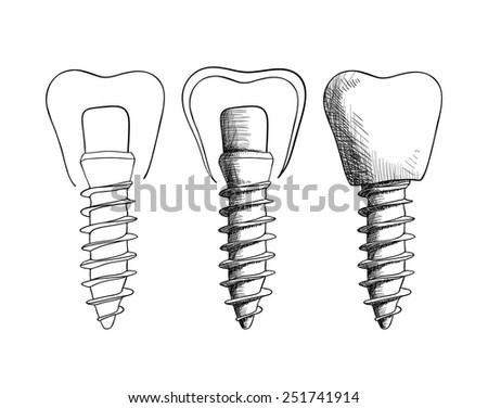 Vector illustration. Set of sketches, dental implants. - stock vector