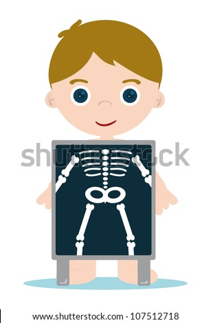 x ray check bones kid - stock vector