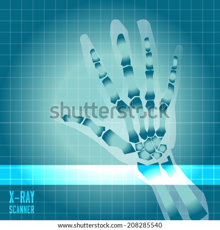 X-ray of human hand with scanner light - vector illustration - stock vector